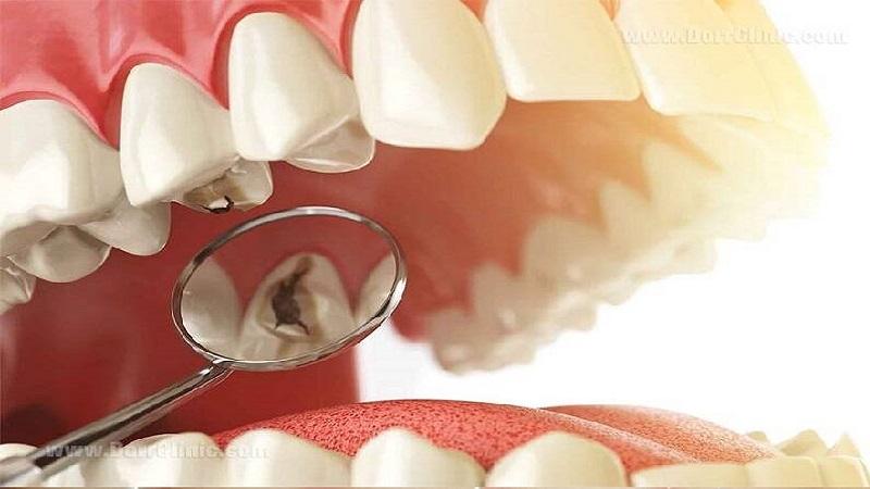 عوامل پوسیدگی دندان | دندانپزشک کودکان اصفهان