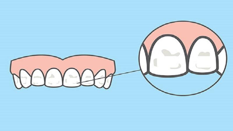 انواع لکه های دندان و درمان آن | دندانپزشک کودکان اصفهان