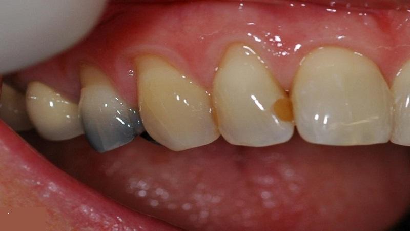 سیاه شدن بین دو دندان   دندانپزشک کودکان اصفهان