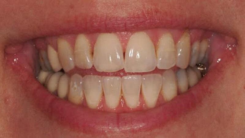 سیاه شدن بین دو دندان | دندانپزشک کودکان اصفهان