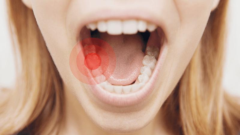 علت و درمان دندان درد در شبانه | دندانپزشک کودکان اصفهان
