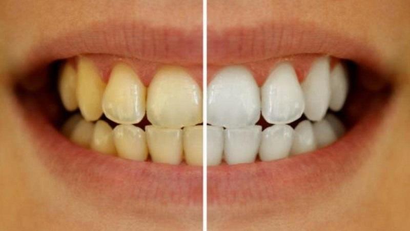 علل و انواع تغییر رنگ دندان | دندانپزشک کودکان اصفهان