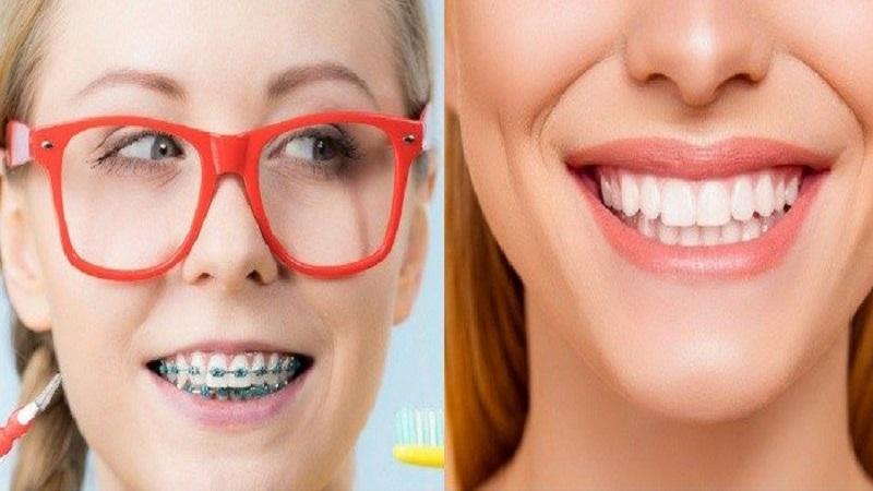 ارتودنسی بهتر است یا لمینت دندان؟ | دندانپزشک کودکان اصفهان