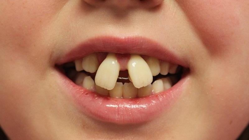 ارتودنسی دو دندان جلو   دندانپزشک کودکان اصفهان