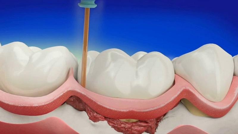 انواع جراحی لثه | دندانپزشک کودکان اصفهان
